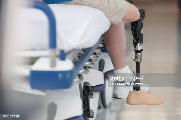 man wearing prosthetic leg in hospital - amputiert stock-fotos und bilder