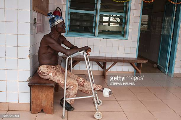 A man who lost his foot to leprosy sits waiting for treatment at the Raoul Follereau Foundation for leprosy screening in Pobe on January 12 2017 In...