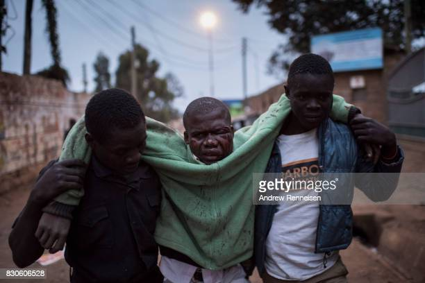 A man who was badly beaten is carried in the Kibera slum on August 12 2017 in Nairobi Kenya Police clashed with opposition supporters overnight as...