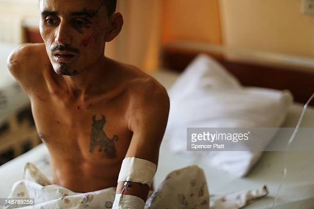 A man who was in a motorcycle accident recovers in a hospital ward on July 19 2012 in Tegucigalpa Honduras Honduras now has the highest per capita...
