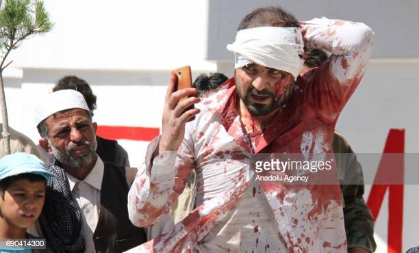 A man who was injured in a suicide bomb attack leaves the scene in Kabul Afghanistan on May 31 2017 At least 80 people were killed and over 350 were...