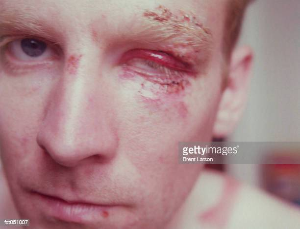 a man with a battered face - swollen stock photos and pictures