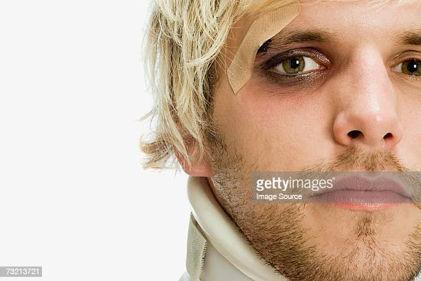 man with a black eye - black eye stock pictures, royalty-free photos & images