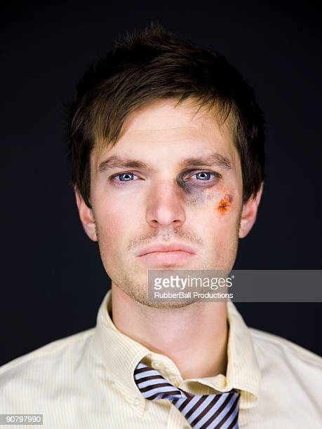 man with a black eye - bruise stock pictures, royalty-free photos & images