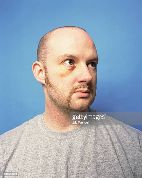 man with a black eye - sideburn stock pictures, royalty-free photos & images