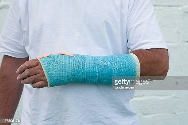 man with a broken wrist - cast colors for broken bones stock pictures, royalty-free photos & images