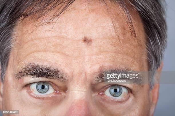 hombre con una serie de melanoma léntigo maligno - cancer de piel fotografías e imágenes de stock