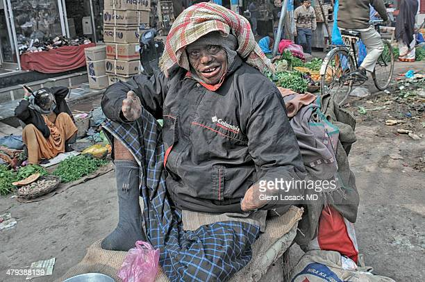 CONTENT] man with advanced leprosy sits on his wagon posing for camera hands have no digits wears a sock to cover his amputated foot Near the ghats