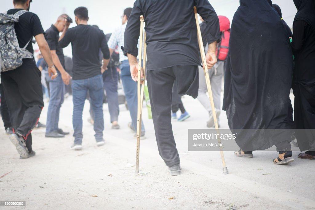 Man with amputee leg walking between people : Foto de stock