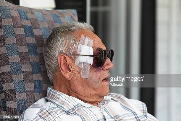Man With Black Eye Injury Bandage and Sunglasses