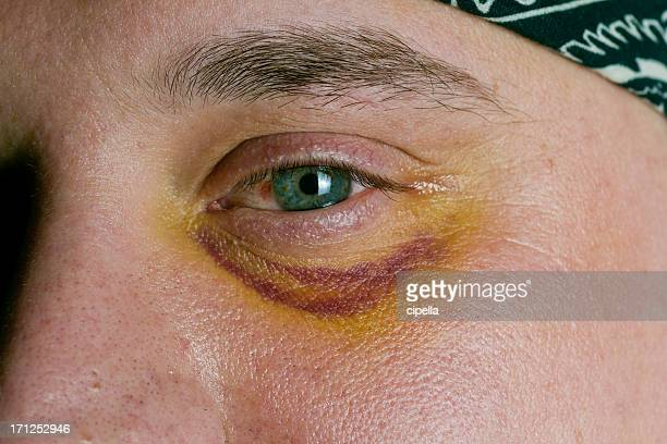 man with black eye injury - black eye stock pictures, royalty-free photos & images
