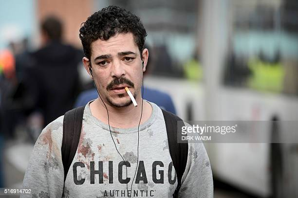 TOPSHOT A man with blood stains on his sweater leaves Brussels airport in Zaventem on March 22 2016 following twin blasts A string of explosions...