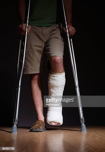 man with broken leg - 杖 ストックフォトと画像