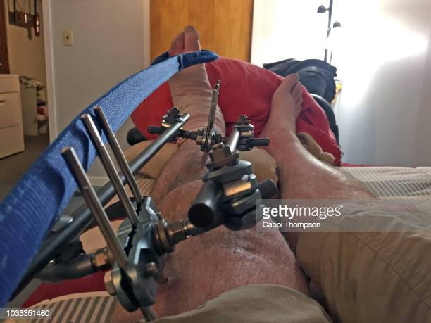 man with broken leg stabilized with metal orthopedic external fixation frame stretching foot - human bone stock pictures, royalty-free photos & images