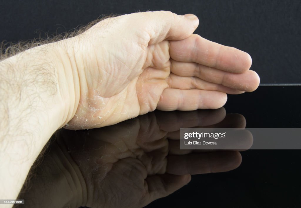 man with cracked skin : Stock Photo