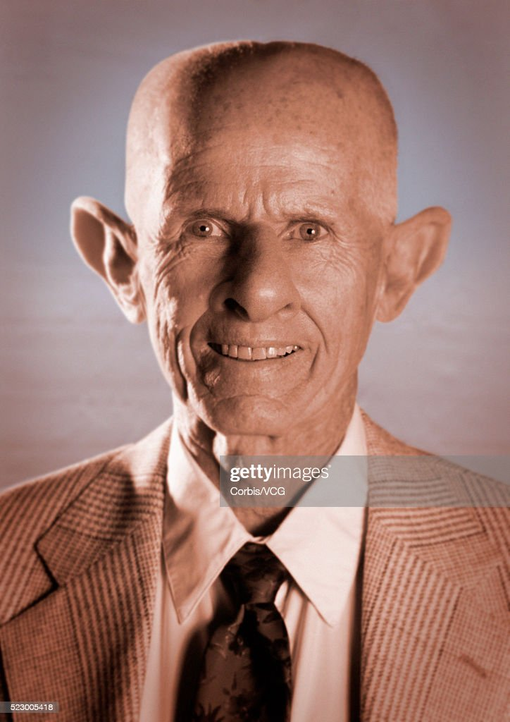 Man with Distorted Features : Stock Photo