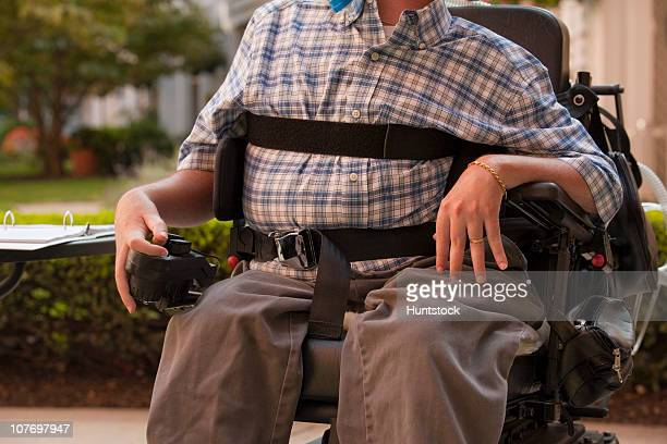 man with duchenne muscular dystrophy sitting in a motorized wheelchair using power controller with degenerated hands - deformed hand stock pictures, royalty-free photos & images