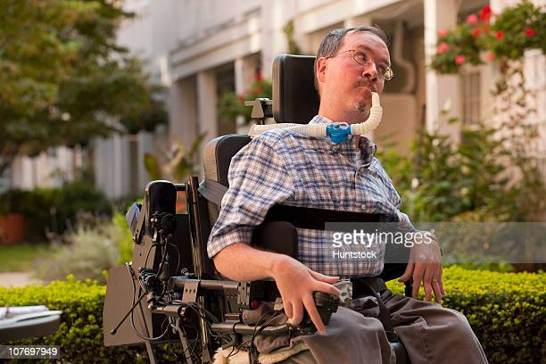 man with duchenne muscular dystrophy sitting in a motorized wheelchair using power controller with degenerated hands - duchenne muscular dystrophy stock photos and pictures