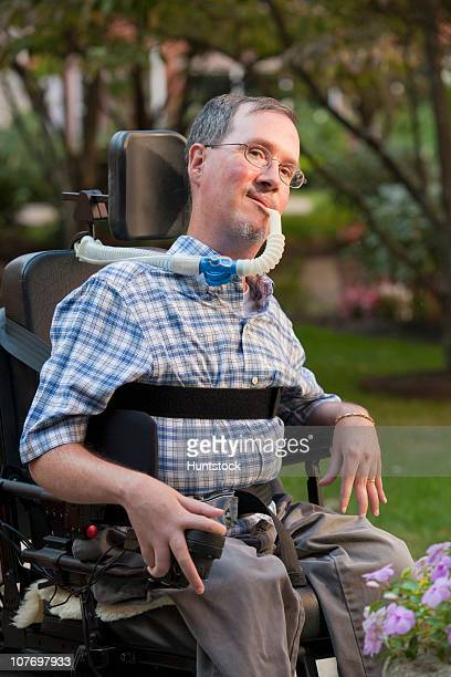 man with duchenne muscular dystrophy sitting in a wheelchair with a breathing ventilator - deformed hand stock pictures, royalty-free photos & images