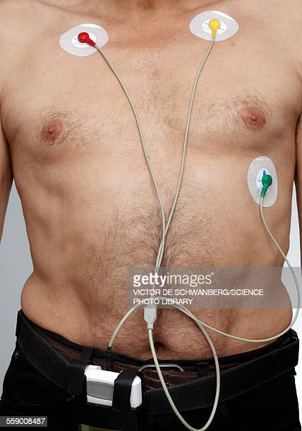 Man with ecg electrodes
