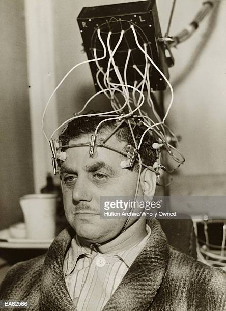Man with electrodes attached to head, close-up (B&W)