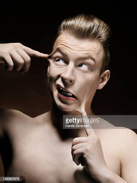man with fingers glued to his head