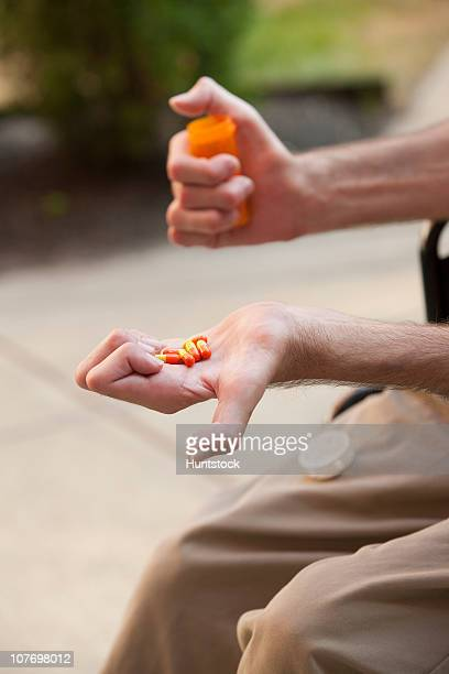 man with friedreich's ataxia holding pills with degenerated hands - deformed hand stock pictures, royalty-free photos & images