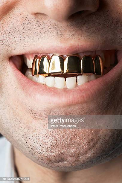 man with gold front teeth, close-up of mouth - gold tooth stock photos and pictures