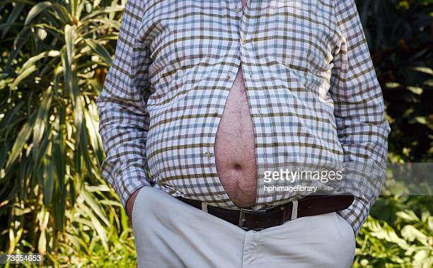 Man with His Large Belly Bursting Through His Shirt