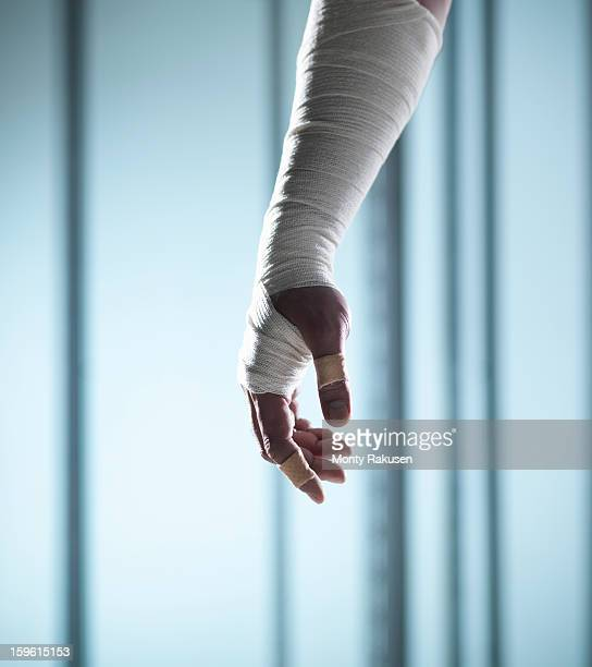 man with medical bandage wrapped around arm and hand with adhesive plasters on finger and thumb - bandage stock photos and pictures