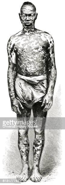 Man with Mottled Skin, Loango Coast, Africa, Illustration, 1885.