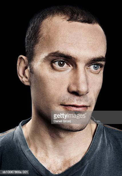 Man with one brown and one blue eye, studio shot, close up