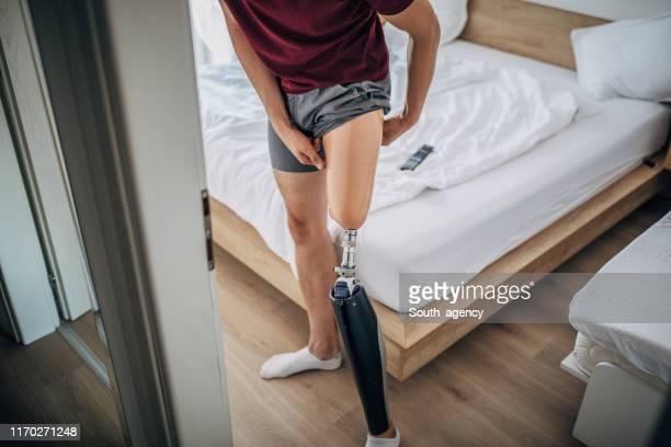 man with one leg applying prosthetic leg - membro imagens e fotografias de stock