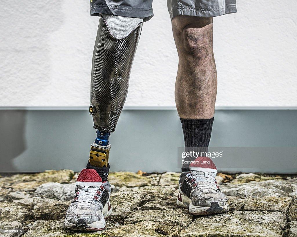Man with prosthetic leg : Stock Photo