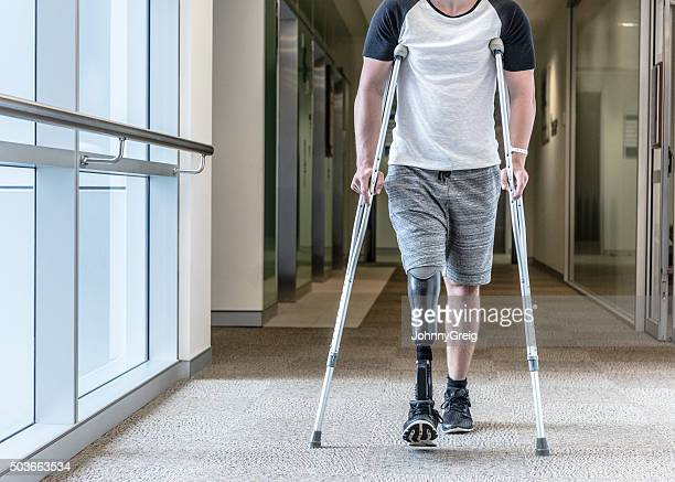 Man with prosthetic leg using crutches to walk down corridor