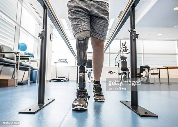 Man with prosthetic leg using parallel bars
