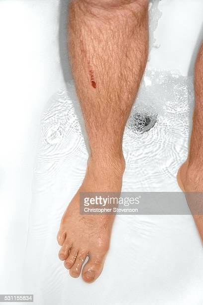 Man with scar on the leg in the shower