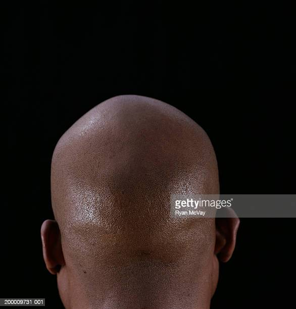 Man with shaved head, rear view, close-up