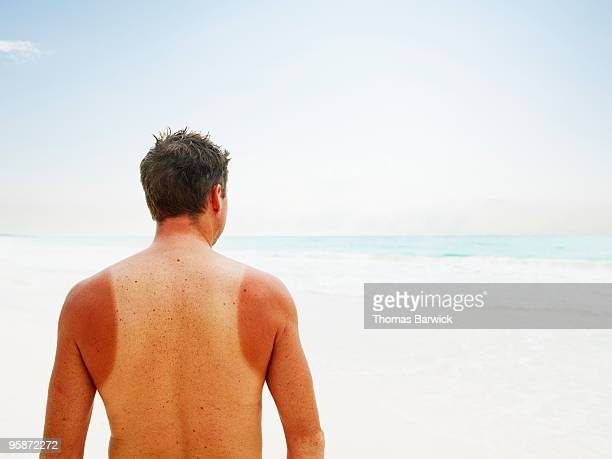 Man with sun burn standing near water on beach