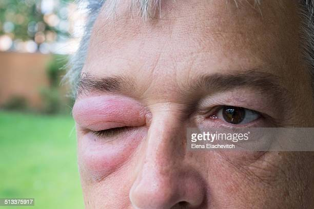 man with swollen eye - insectenbeet stockfoto's en -beelden