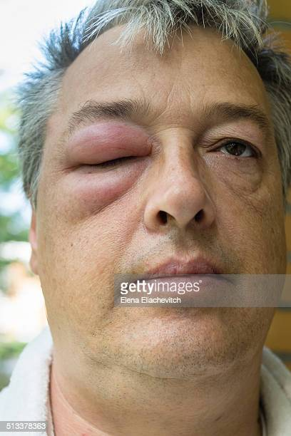 man with swollen eye - insektenstich stock-fotos und bilder