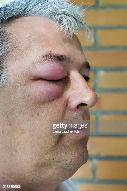 man with swollen eye - insektsbett bildbanksfoton och bilder