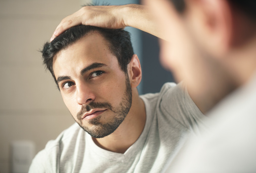 Man Worried For Alopecia Checking Hair For Loss 980122572