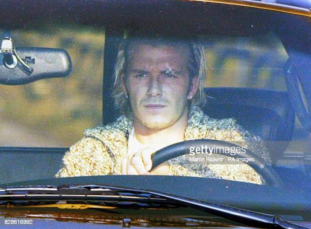 Manchester United soccer star David Beckham arrives at the club's Carrington Training centre with a plaster over his left eye * Manager Sir Alex...