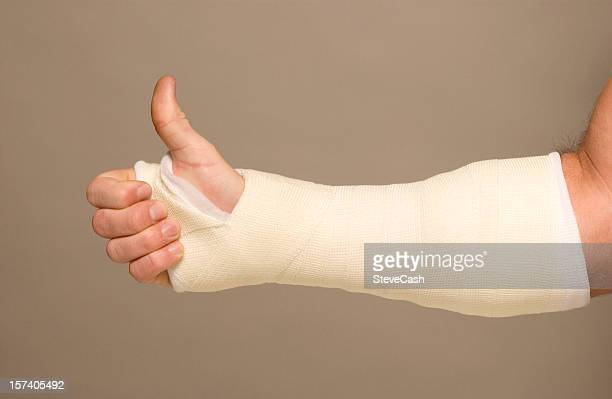 mans arm in cast - cast colors for broken bones stock pictures, royalty-free photos & images