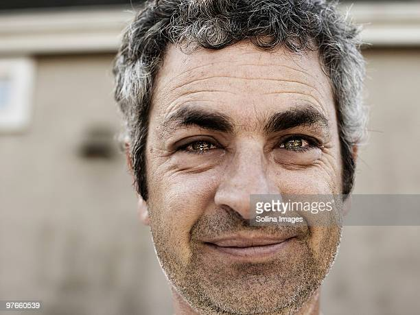 Man's Eyes watering and face puffed up
