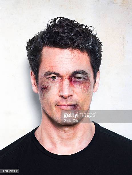 man's face severely beaten up after fight - brown eyes stock pictures, royalty-free photos & images