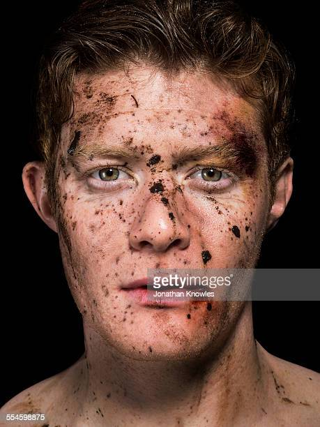 Man's face with mud splattered and bruises