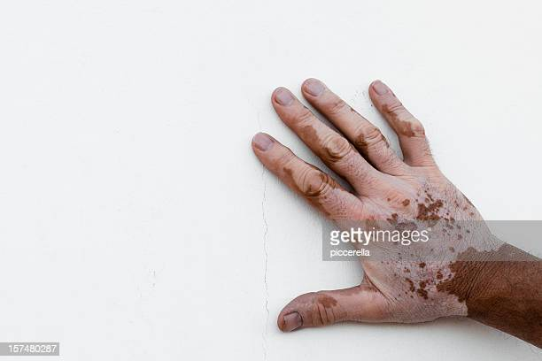 Man's hand affected by vitiligo isolated on white background