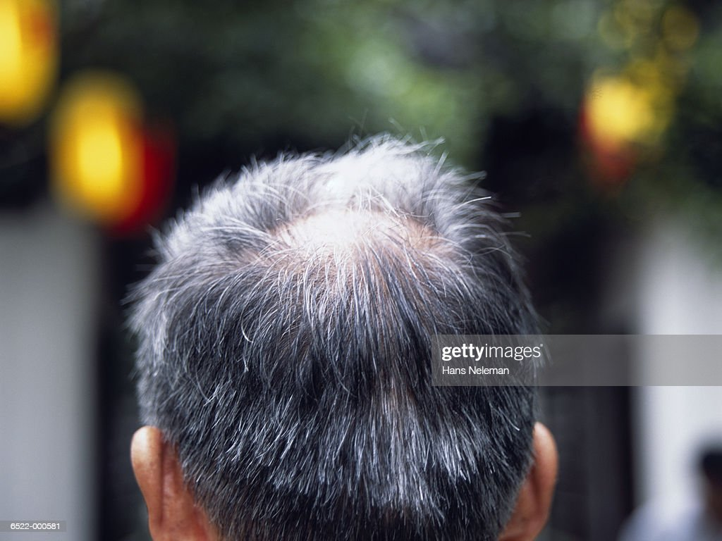 Man's Head : Stock Photo
